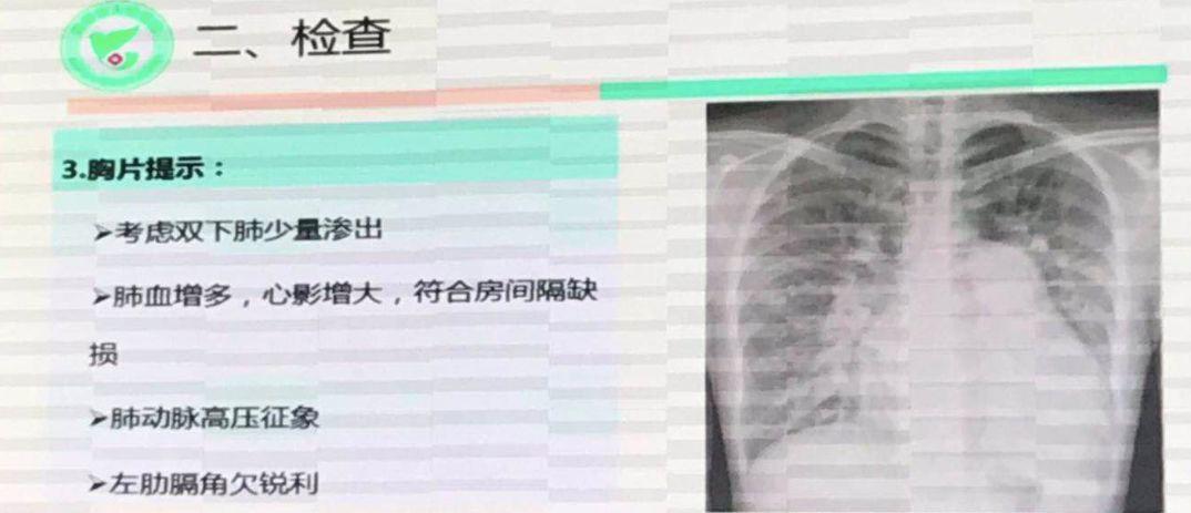"""刚刚,中国完成首例AI+5G心脏手术!2分钟AI建模,400公里远程协作""""补心"""""""