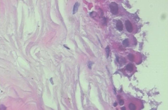 医学图像 | 使用深度学习实现乳腺癌分类(附python演练)